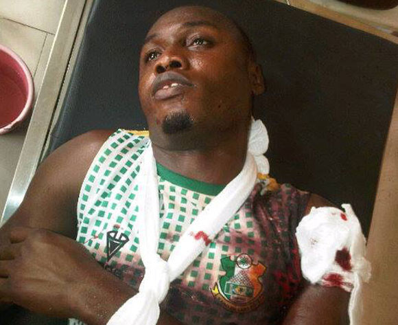 Gambo undergoes surgery to remove bullets